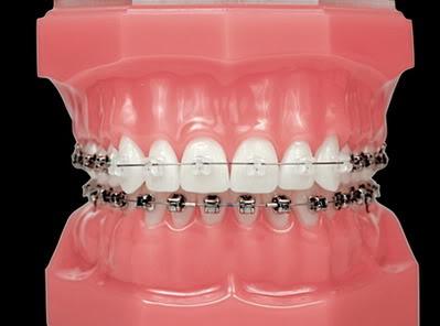 Металлическая система на нижних зубах