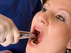 Можно ли вырвать зуб в домашних условиях безболезненно?