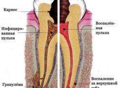 Причины боли в корне зуба