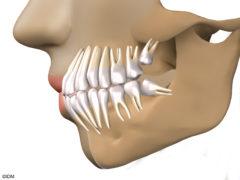 Сколько дней длится боль после удаления зуба мудрости?