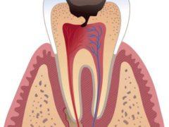 Признаки и лечение начального пульпита