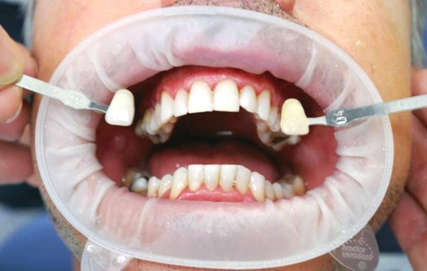 Фиксация губ держателями