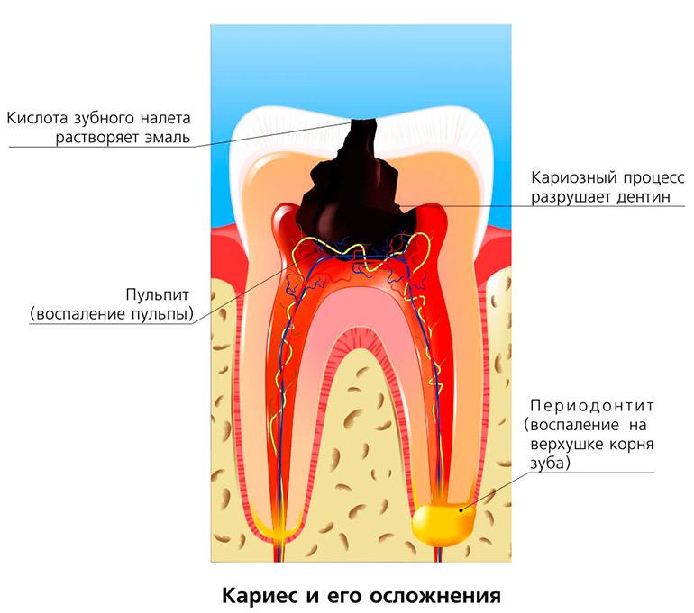 Разрушение зуба кариозным процессом