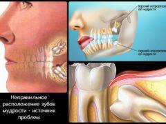 Могут ли болеть уши от зубной боли?