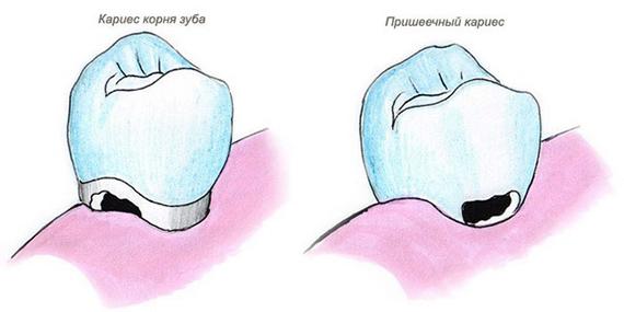 Дислокация заболевания