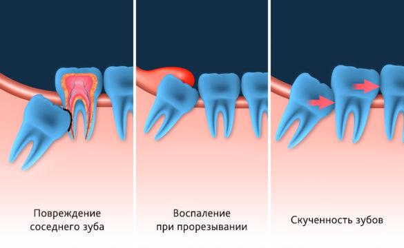 Возможные проблемы с зубами мудрости