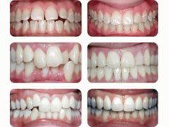 Устройство и установка брекетов на зубы