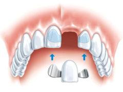 Какие виды зубных протезов и мостов существуют?
