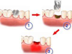 Почему может возникнуть альвеолит после удаления зуба?