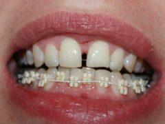 Установка брекетов на нижнюю челюсть