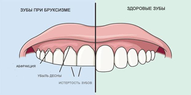 Влияние заболевания на зубы