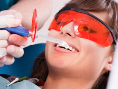Как делают лазерное отбеливание зубов?