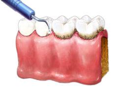 Профессиональная чистка зубов в стоматологии