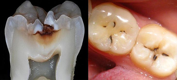 Фиссурная форма заболевания зуба