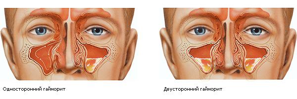 Носовые пазухи при гайморите
