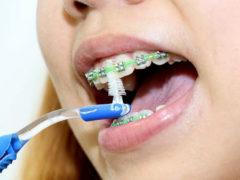 Как пользоваться ершиком для чистки зубов?