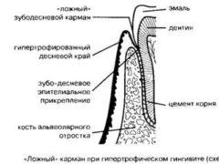 Диагностика и лечение гипертрофического гингивита