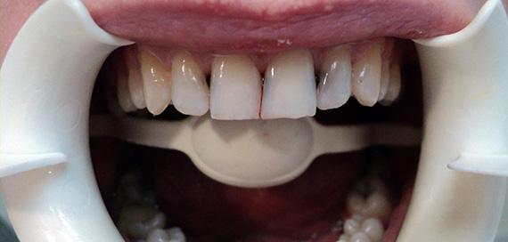 Поражение передних зубов