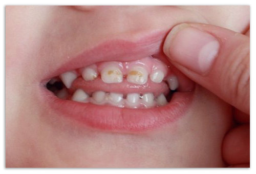 Сыпь во рту у ребенка фото это стоматит