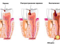 Каким может быть патогенез кариеса?