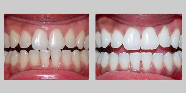 Оттенок зубов до и после чистки лазером