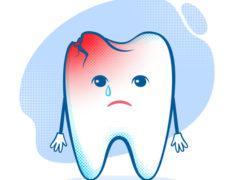 Методика лечения кариеса в стоматологии
