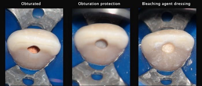 Заполнение зуба отбеливающим гелем
