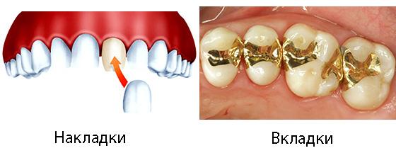 Накладка на зуб