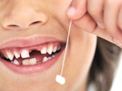 Присутствует ли нерв в молочном зубе?