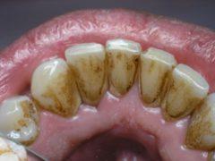Причины появления коричневого налета на зубах