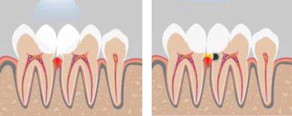 Как сделать контактный пункт в зубе