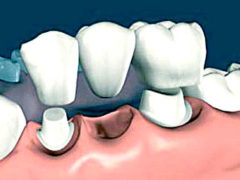 Какие бывают несъемные зубные протезы?