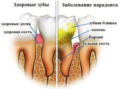 Способы удаления зубного камня в домашних условиях