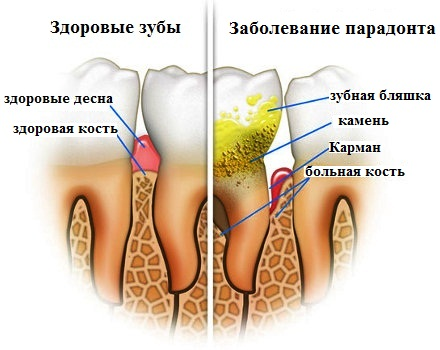 Заболевание пародонта из-за зубного камня