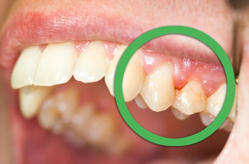 Как лечить воспаление зубов в домашних условиях 12