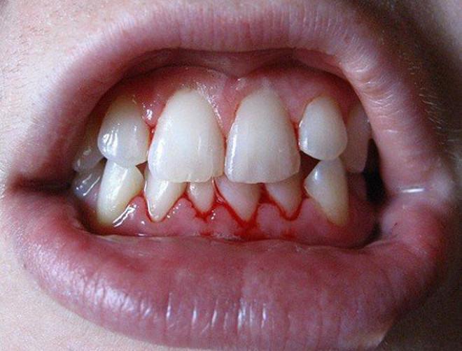 Кровоточивость десен - признак гингивита