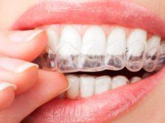 Как пользоваться капами для отбеливания зубов?
