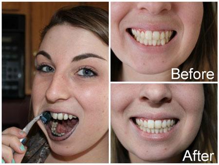До и после чистки зубов углем