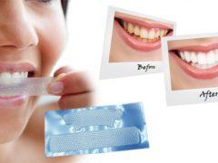 Как пользоваться полосками для отбеливания зубов?