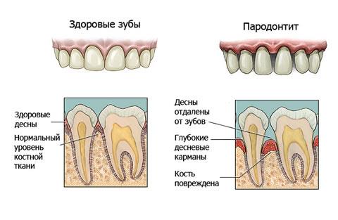 Здоровые зубы и пародонтит