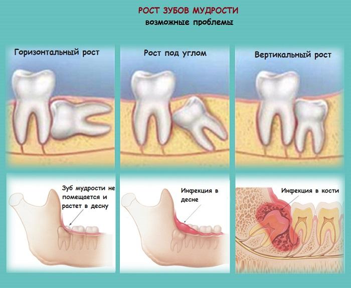Проблемы при росте зубов мудрости