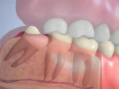 Какие последствия удаления зуба мудрости могут быть?