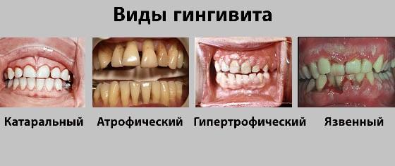 Виды заболевания десен