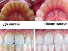 Как выглядит на фото зубной камень?
