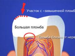 Что можно сделать, если болит зуб после лечения?
