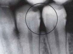 Лечение и профилактика кариеса между зубами