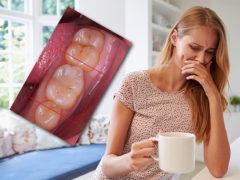 Что делать, если беспокоит зубная боль при беременности?