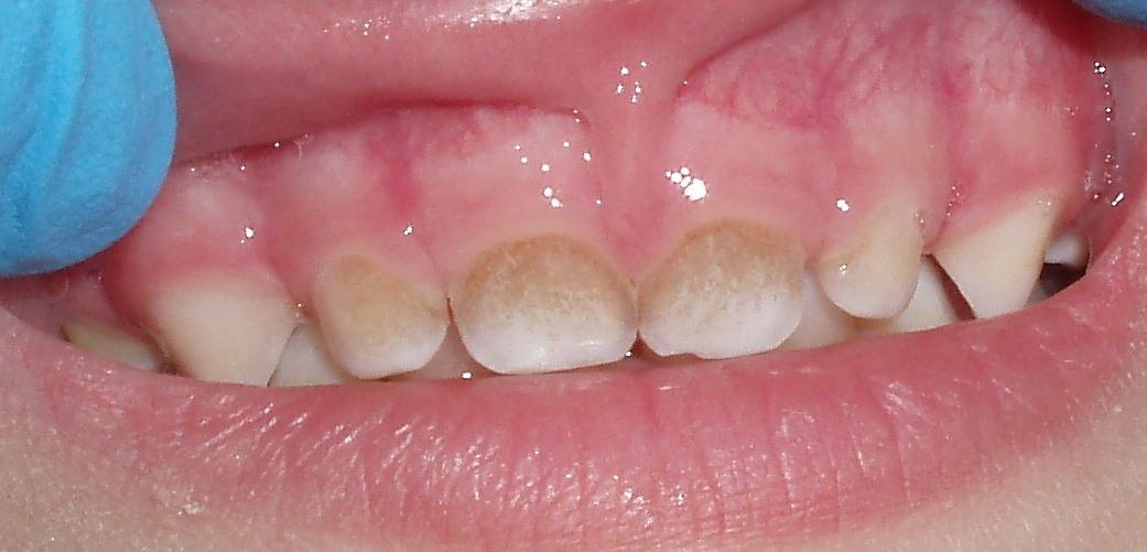 Тёмный налёт на передних зубах