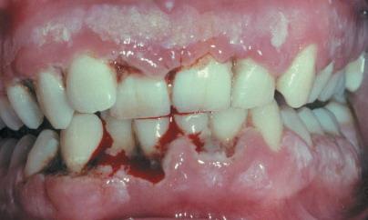 Разрушение десен при язвенной форме заболевания