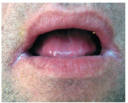 Ангулярный стоматит: фото, лечение, признаки